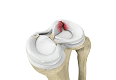 Meniscal Repair/Meniscectomy